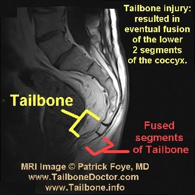 Tailbone Images For Coccyx Pain Tailbone Doctor