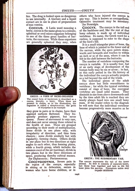 Coccyx Pain, 1950s, Page 1, Tailbone Pain