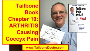 Chapter 10 of Tailbone Pain Book, ARTHRITIS, Coccyx Pain, osteoarthritis, degenerative joint disease, DJD