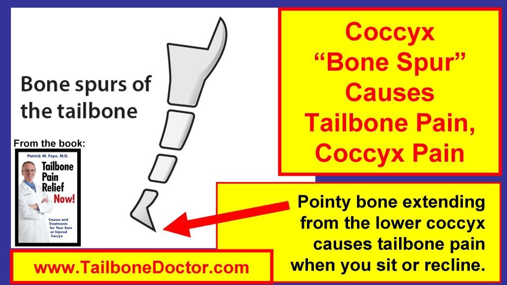 Coccyx Bone Spur Causes Tailbone Pain, Coccyx Pain, Bone Spicule