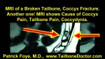 MRI of a Broken Tailbone, Coccyx Fracture, Coccyx Pain, Tailbone Pain, Coccydynia