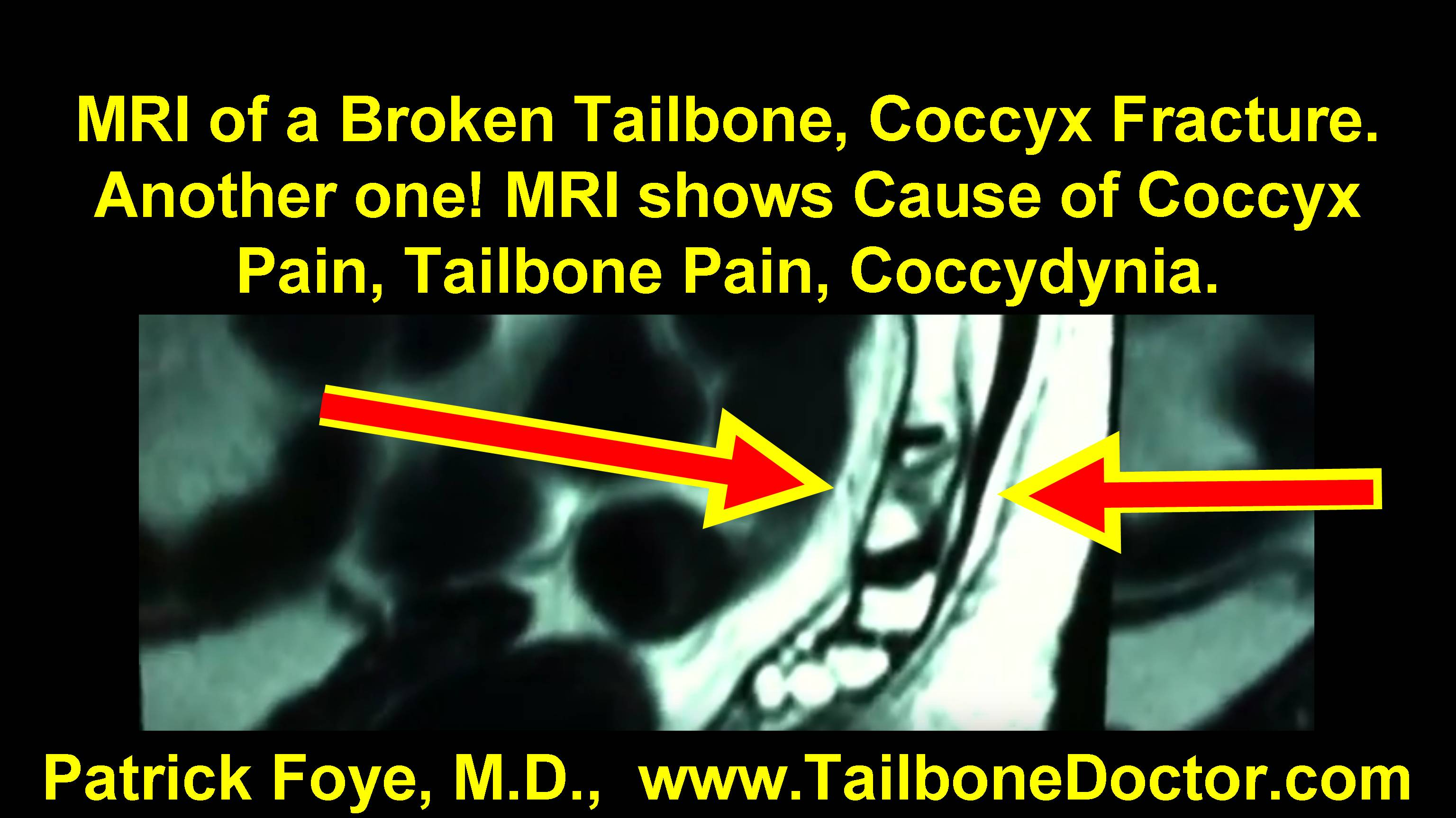 MRI of Broken Tailbone, Coccyx Fracture  See what the