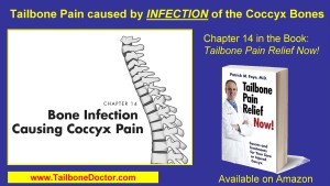 INFECTION Causing Tailbone Pain, Chapter 14 in Dr. Foye's coccyx book