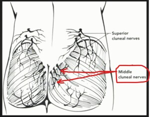 Middle Cluneal Nerve is mainly NOT in the area of Tailbone Pain, Coccyx Pain, Coccydynia