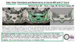 Baby Yoda, Pareidolia and Patternicity in Sacral MRI and CT Scans, by Patrick Foye MD